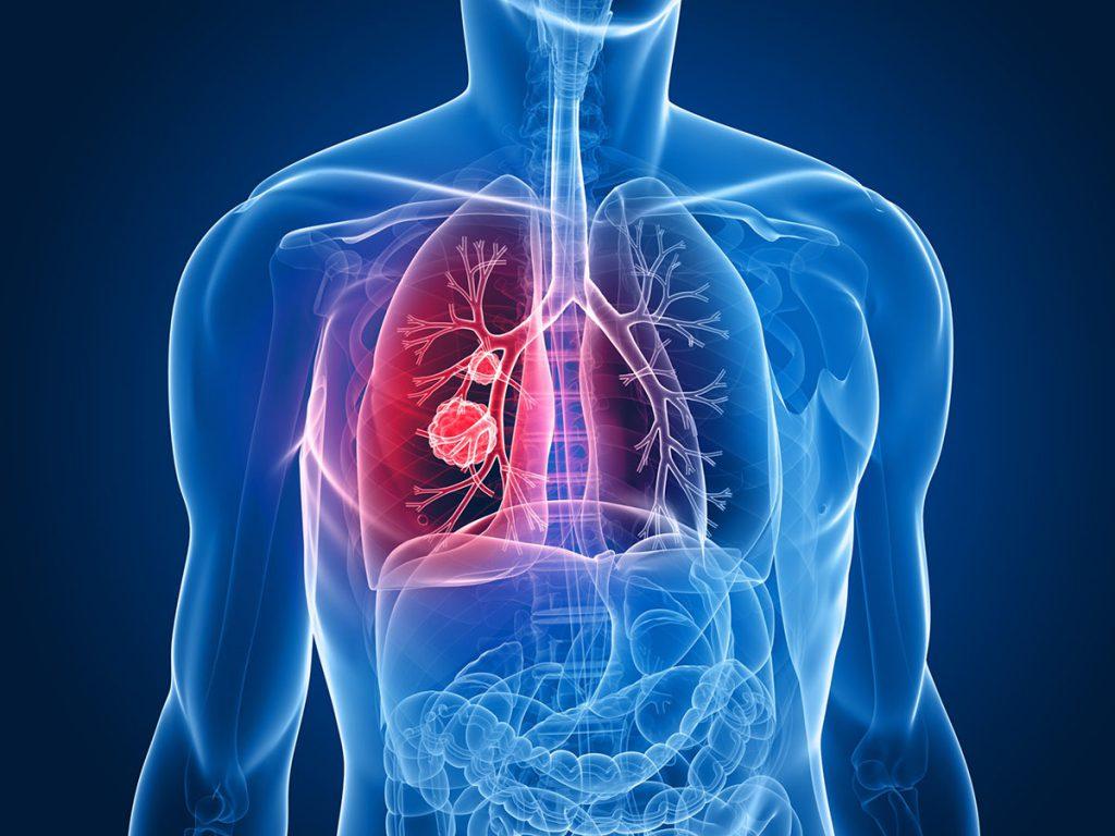 عفونت تنفسی بیمارستانی
