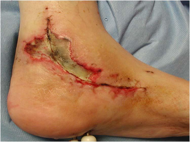 عفونت زخم های جراحی