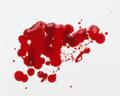 پاک کردن لکه های خونی